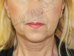 lifting cervico facial photo après