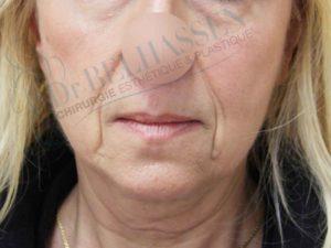 lifting cervico facial photo avant