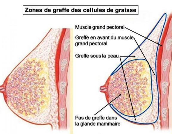 lipofilling mammaire nice