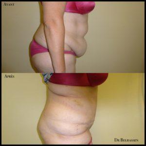 Abdominoplastie -chirurgie de la silhouette