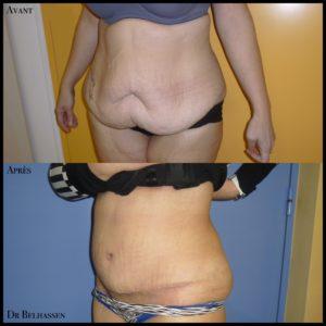 Abdominoplastie 4-min