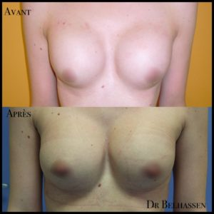 Augmentation mammaire 10-min