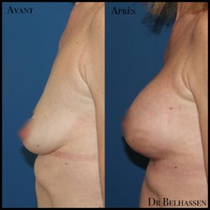 Augmentation mammaire-chirurgie mammaire chez Dr Belhassen