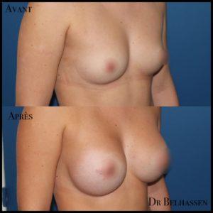 Augmentation mammaire 2-min
