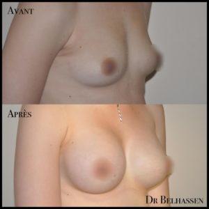 Augmentation mammaire 3-min