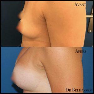 Augmentation mammaire 4-min