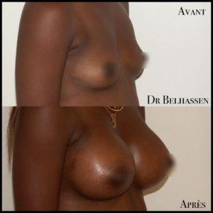 Augmentation mammaire 5-min