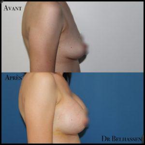 Augmentation mammaire 6-min
