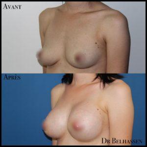 Augmentation mammaire 8-min