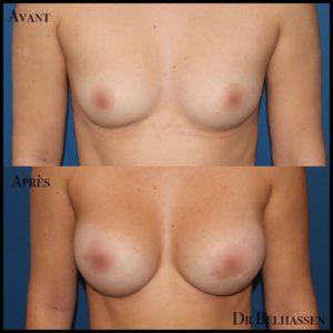 Augmentation mammaire-min