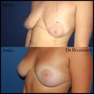 Cure de ptose mammaire 13-min
