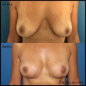 Cure de ptose mammaire 17-min