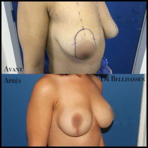 Cure de ptose mammaire 19-min
