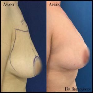 Cure de ptose mammaire 2-min