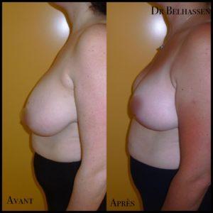 Cure de ptose mammaire 20-min