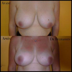 Cure de ptose mammaire 21-min