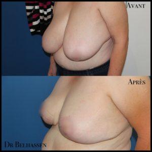 Cure de ptose mammaire 23-min
