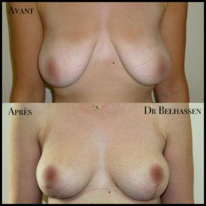Cure de ptose mammaire 4-min