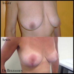 Cure de ptose mammaire 9-min