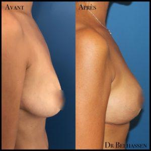 Cure de ptose mammaire-Dr Belhassen