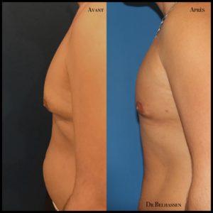 Gynécosmastie + Liposuccion abdomen-min