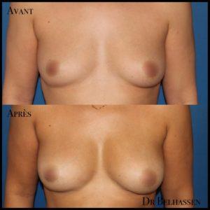 Lipofiling de seins-Dr Belhassen
