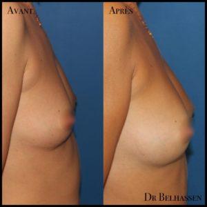 Lipofiling de seins-min