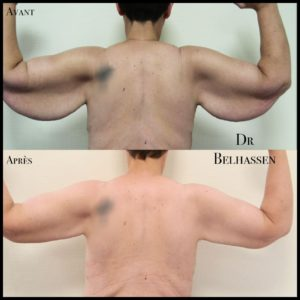 Lifting de bras -chirurgie de la silhouette