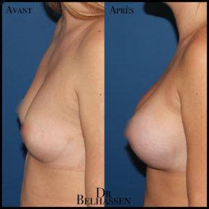 Prothèse mammaire-min