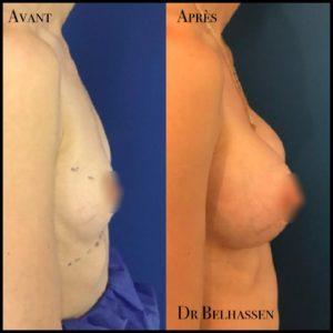 Prothèses mammaire 2-min