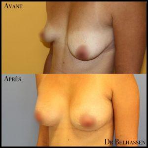 Prothèses mammaire 3-min