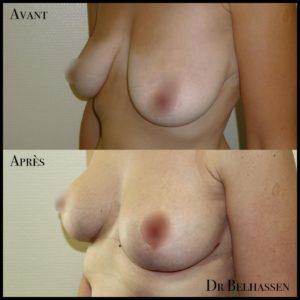 Prothèses mammaire 4-min