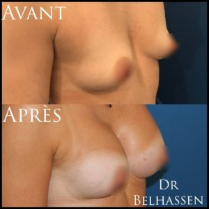 Prothèses mammaire 5-min