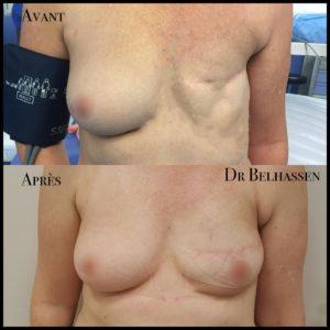 Reconstruction mammaire-min