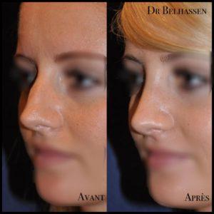 rhinoplastie-chirurgie-visage Dr Belhassen