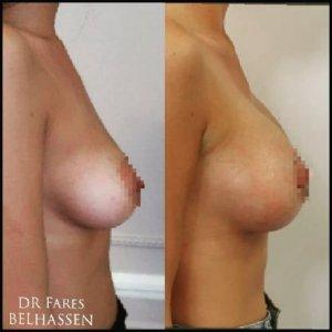 Photos avant-après chirurgie mammaire-Dr Farès Belhassen