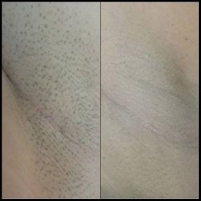 Photos avant-après traitement par laser médecine esthétique