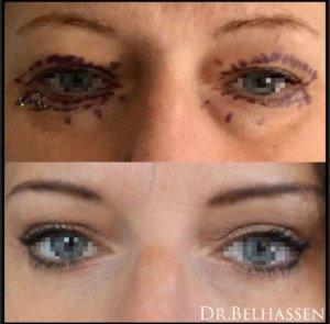 Blépharoplastie Dr Belhassen Chirurgien esthétique à Nice