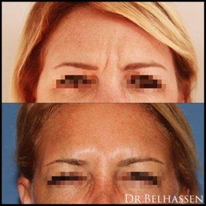 Botox-Injections de toxine botulique Injections de toxine botulique chez Docteur Belhassen chirurgien esthétique à Nice