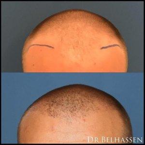 Greffe-cheveux-compressor