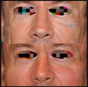 Lifting cervico-facial chez Docteur Farès Belhassen Chirurgien esthétique à Nice