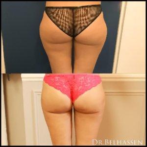 Lipofilling des fesses -chirurgie de la silhouette