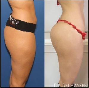 Lipofilling des fesses - prothèse des fesses chez Dr Belhassen