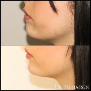 Génioplastie-chirurgie médecine esthétique chez Docteur Belhassen