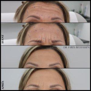 Photos avant-après traitement par laser médecine esthétique- chez Docteur Farès Belhassen