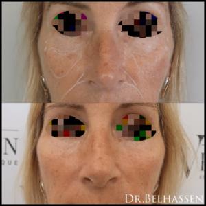 Injections d'acide hyaluronique-médecine esthétique-Dr Belhassen
