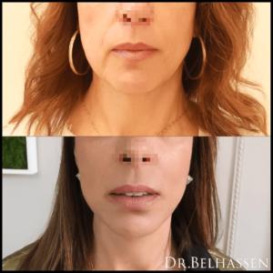 photos avant-après médecine et chirurgie du visage chez Docteur Farès Belhassen
