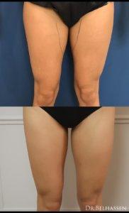 Photos avant et après-Liposuccion avec Dr Belhassen