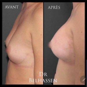 Docteur Farès Belhassen à Nice chirurgie mammaire