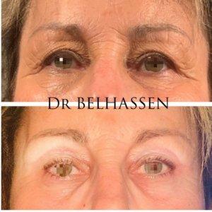 Blépharoplastie Dr Belhassen